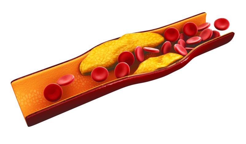 Balance Your Cholesterol Levels