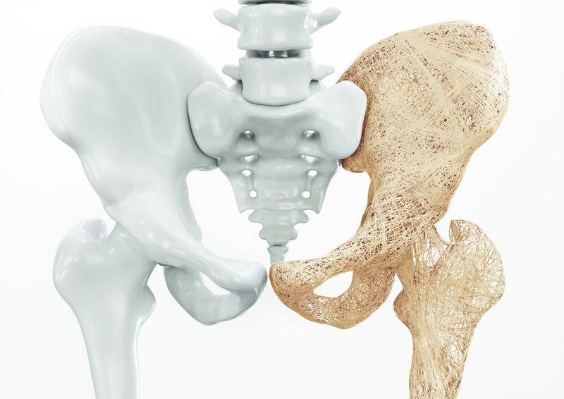 Can Reduce Bone Loss