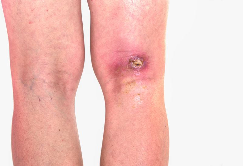 Combat resistant infections
