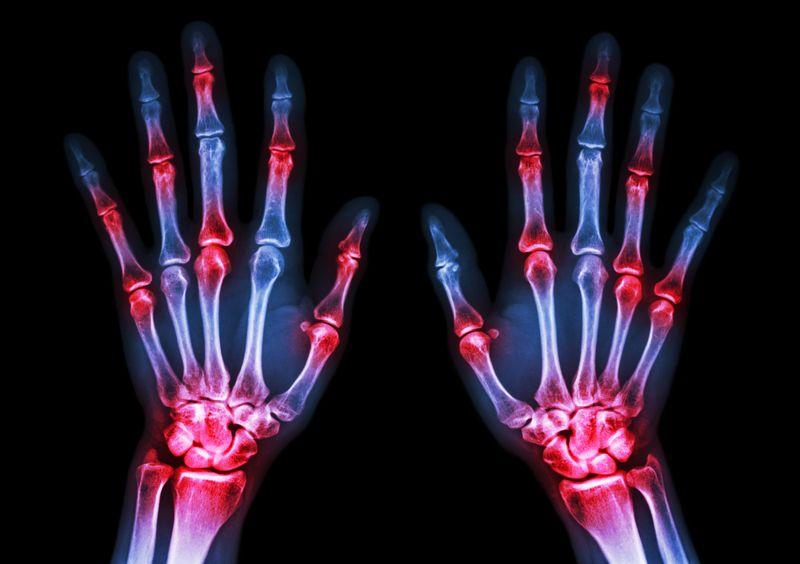 Fight Rheumatoid Arthritis