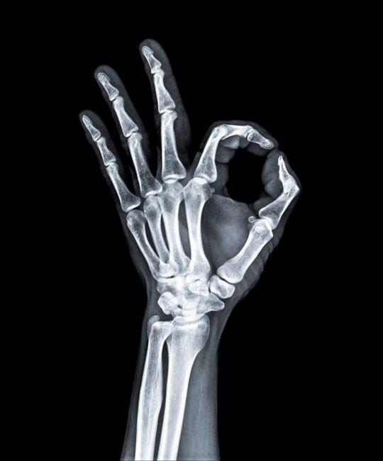 Help Strengthen Bones