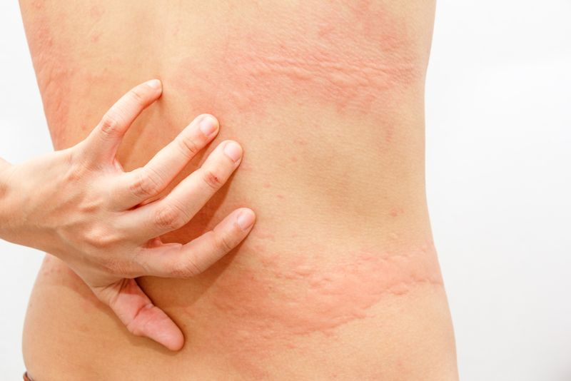 Infections of the Skin