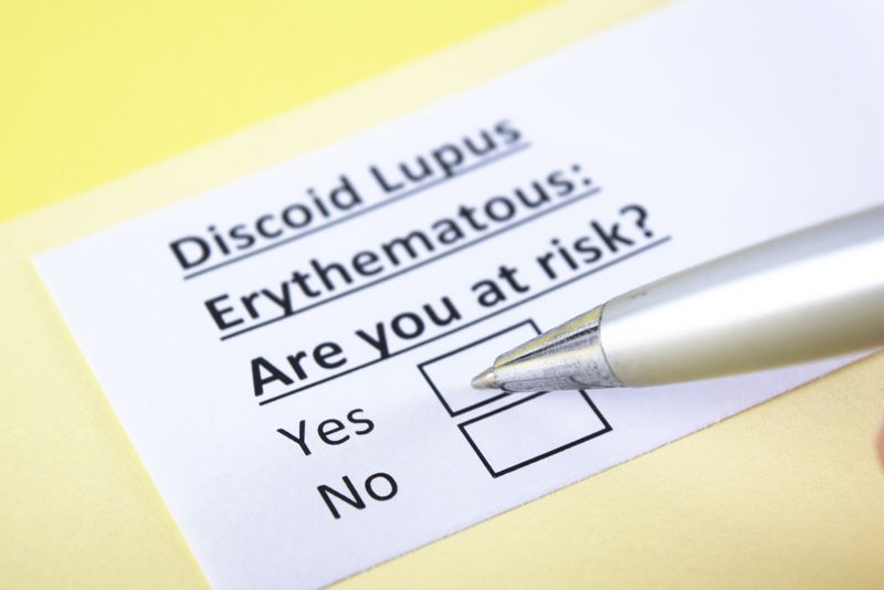 Lupus (SLE) Systemic Lupus Erthematosus