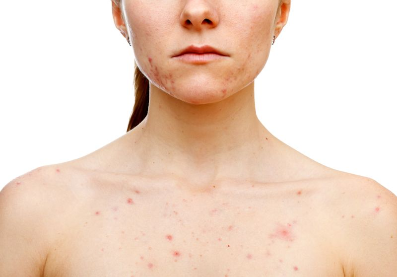 Reduction of Scars, Treatment of Skin Problems Fenugreek