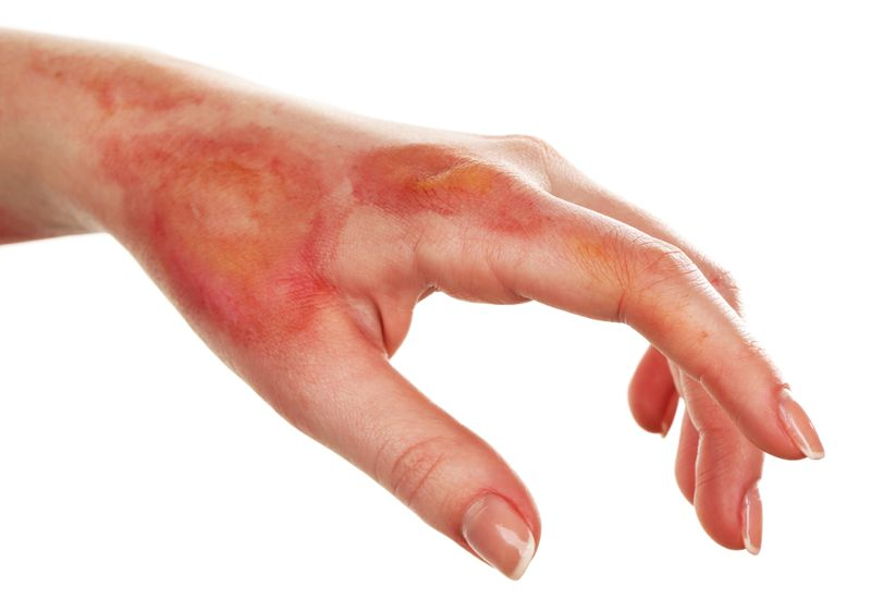 Treat burns and ulcers