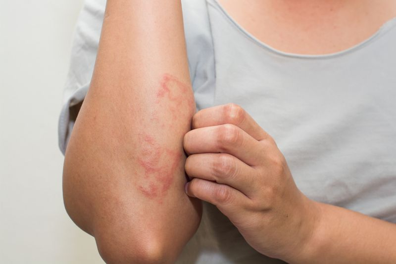 Treat skin conditions