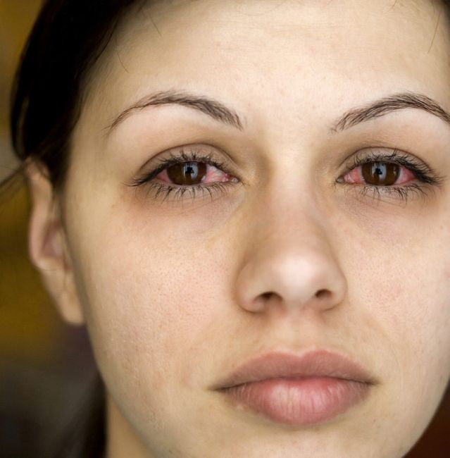 Complications from eye infections