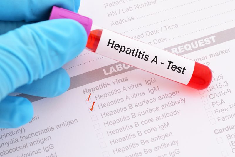 10 Things to Know About Hepatitis A (Symptoms, Causes, and More)