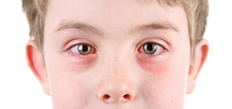 Eye infections and children