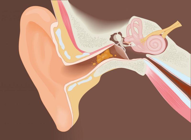 Medial attention to eustachian tube dysfunction