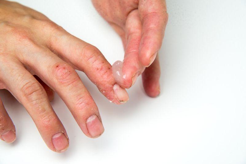 Topical Treatments for Pemphigoid