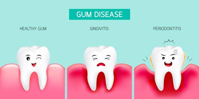 Treats Gum Disease