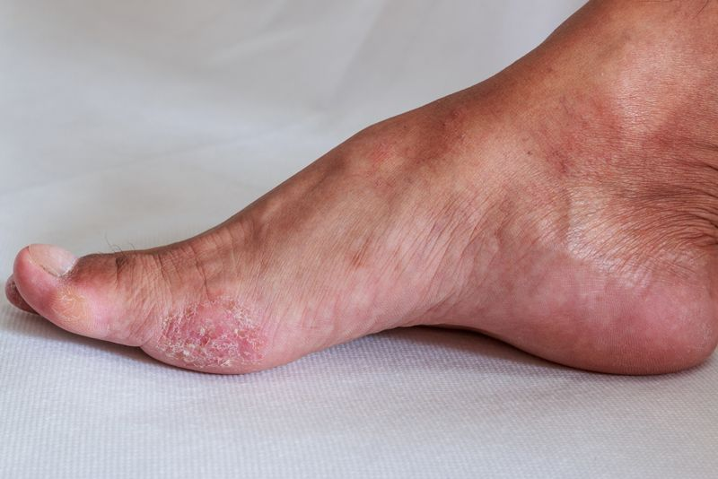 Useful in treating fungal infections