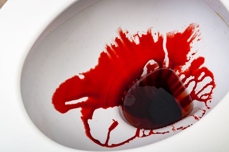 Vomiting Blood or Bloody Stools