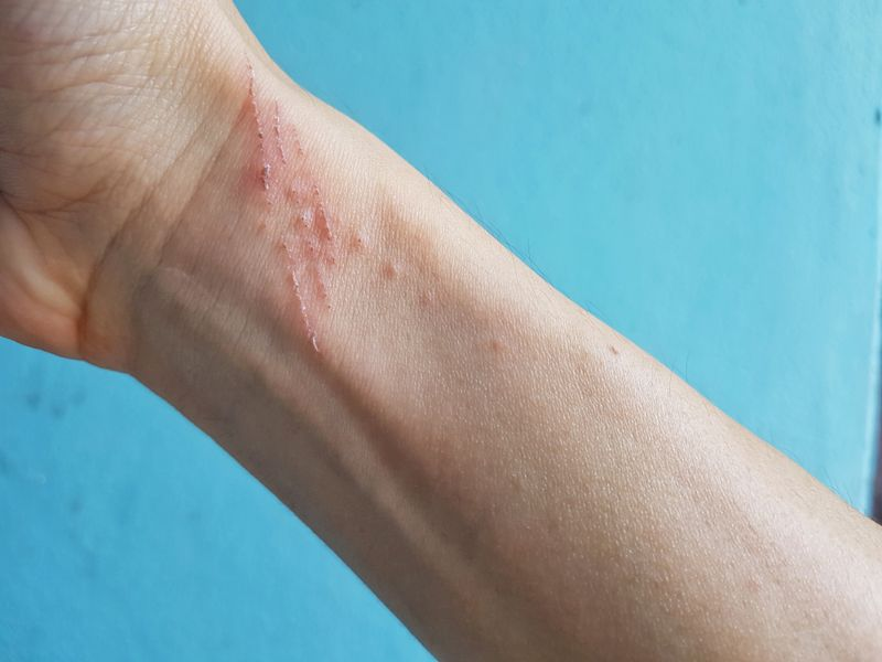 Symptoms and Treatments of Sporotrichosis