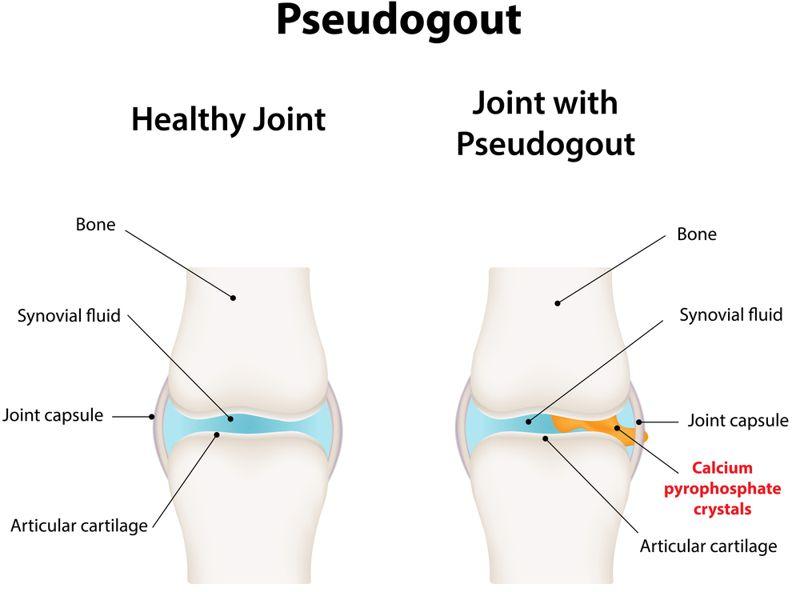 gout chondrocalcinosis