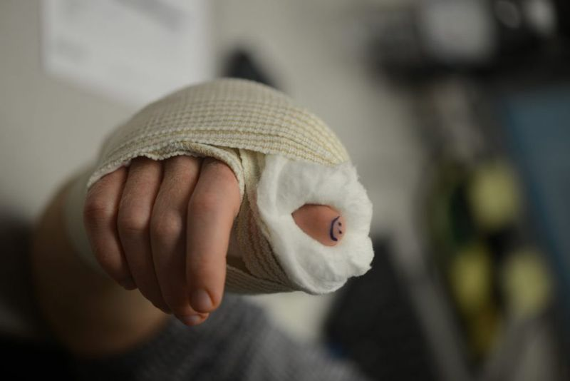 surgery for  skier's thumb
