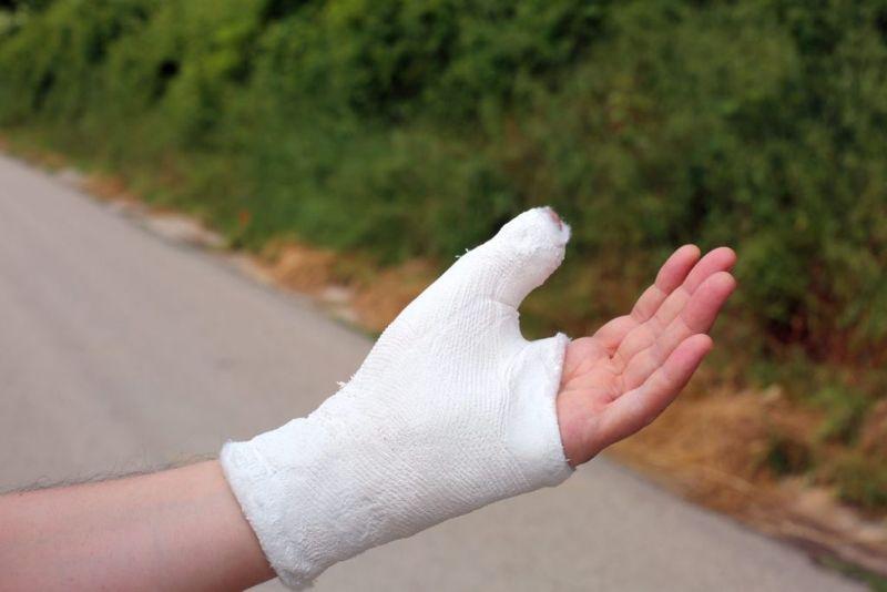 x ray  skier's thumb