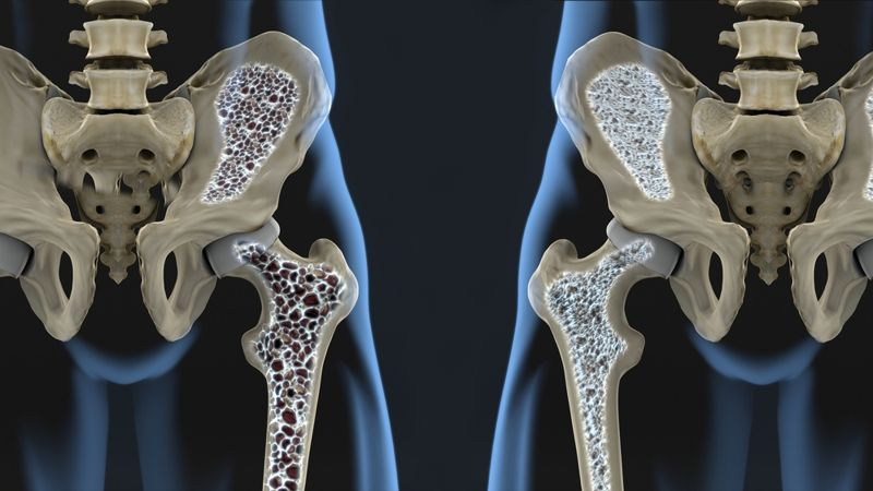 Protect Those Bones With More Chromium
