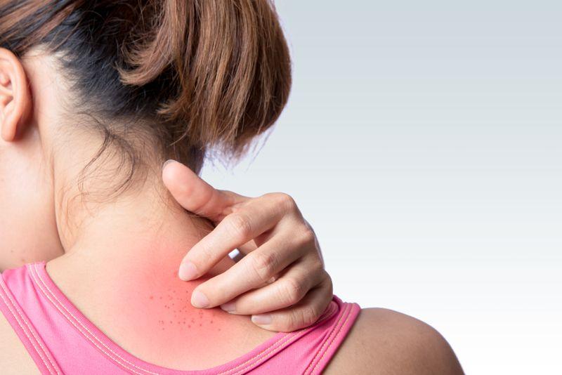 Dermatitis Herpetiformis rashes