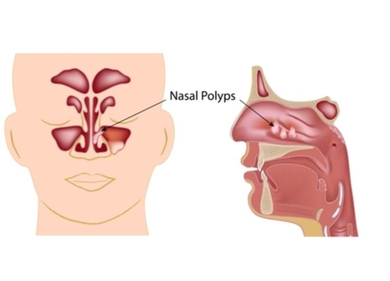 what is nasal polyps