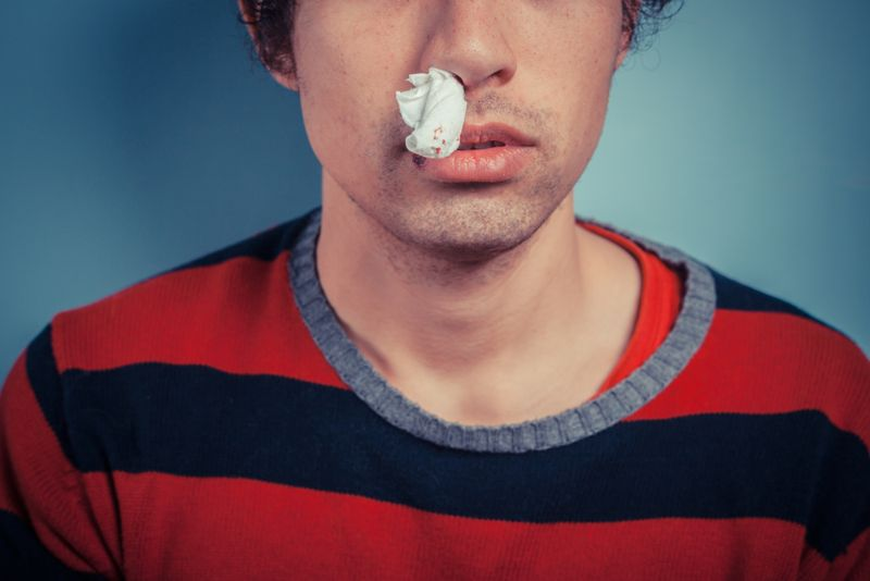 Young man with tissue in his nostril has nose bleed