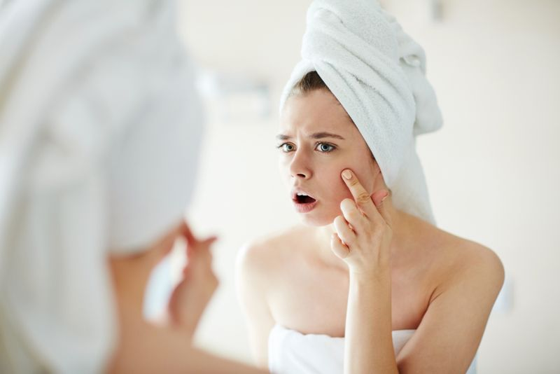 common thyme acne