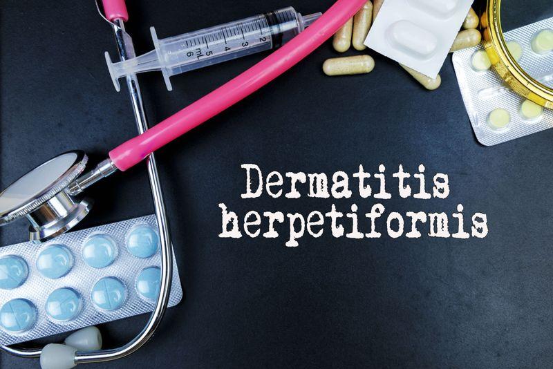 contact Dermatitis Herpetiformis