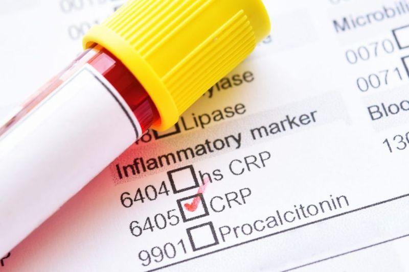 CRP blood test