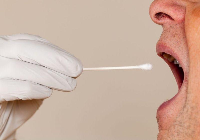 saliva  dry mouth