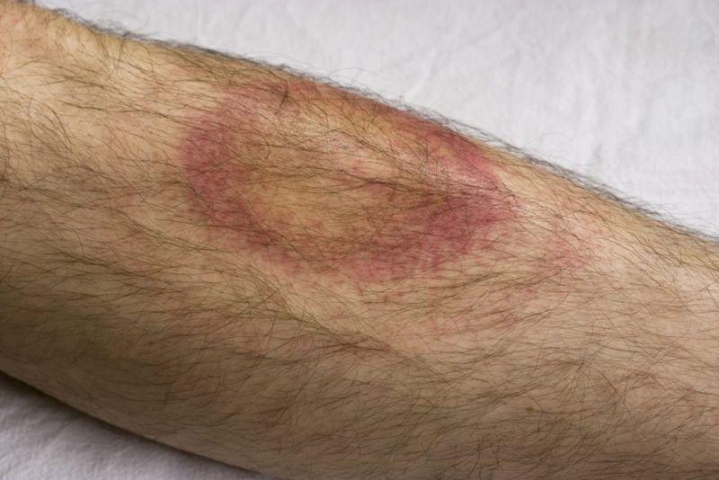 lyme disease apitherapy