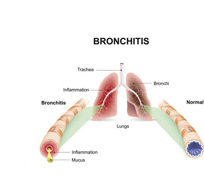 windpipe bronchitis