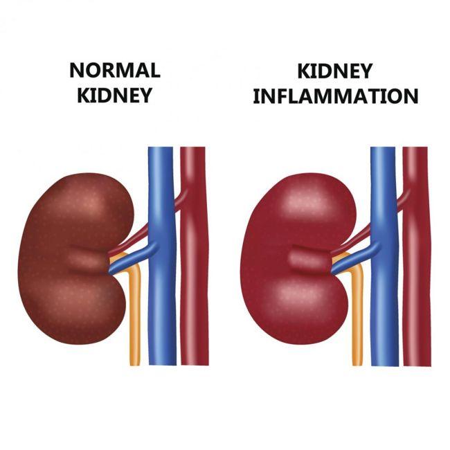 normal kidney vs inflammed
