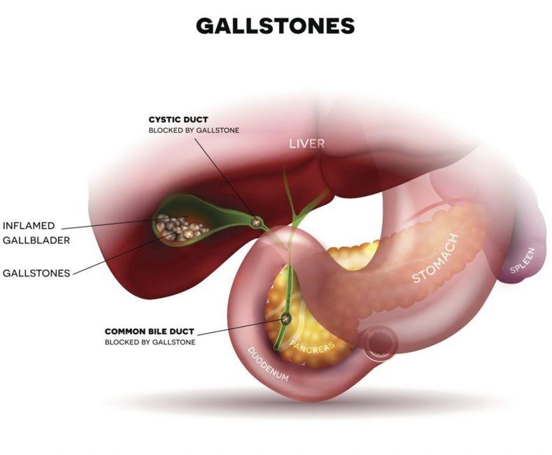 gallstones yellow skin