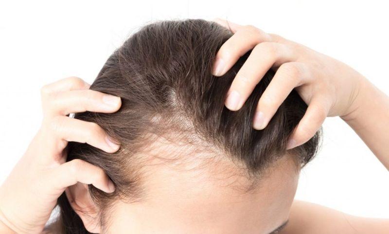temporary hair loss Telogen effluvium