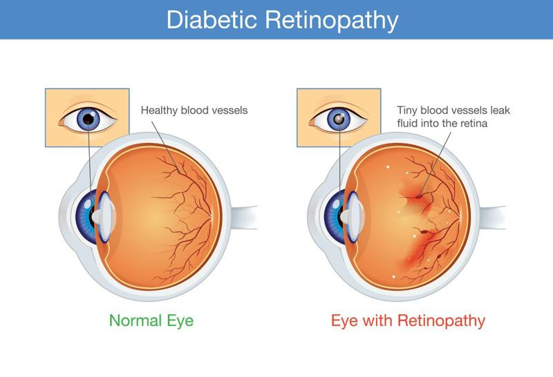 Signs, Causes, and Treatments of Diabetic Retinopathy