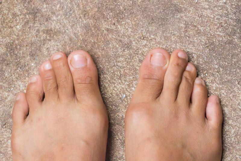 rest gout