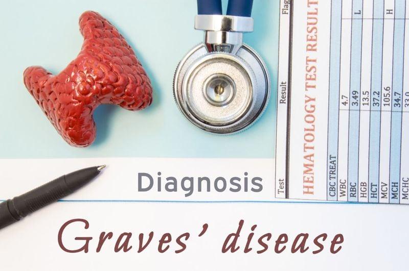 Symptoms of Graves' Disease