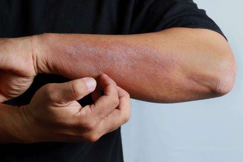 eczema fulvic acid