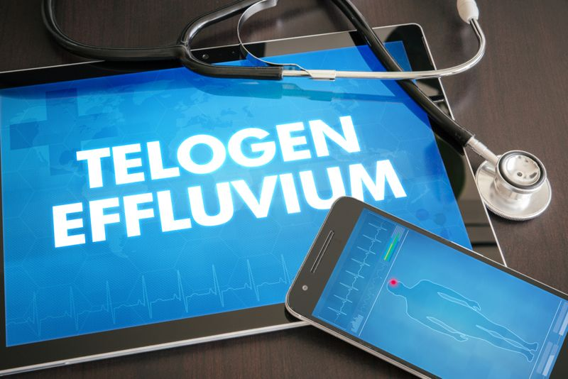 Frequently Asked Questions About Telogen Effluvium
