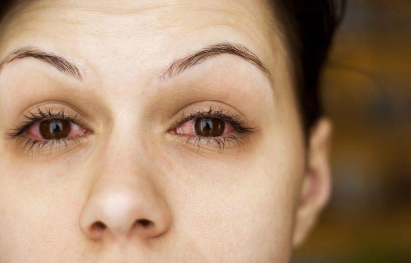 Thyroid eye problems