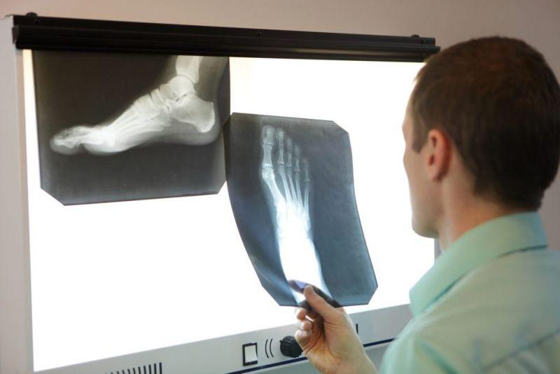 doctor foot xray imaging