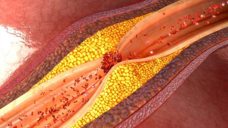 AKBA hardening-of-arteries cardiovascular-disease