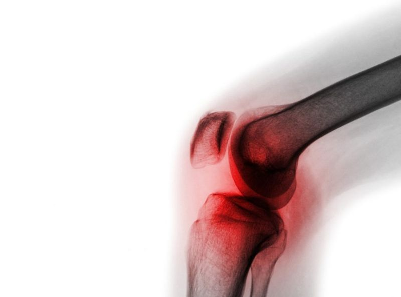 septic arthritis Septic Arthritis