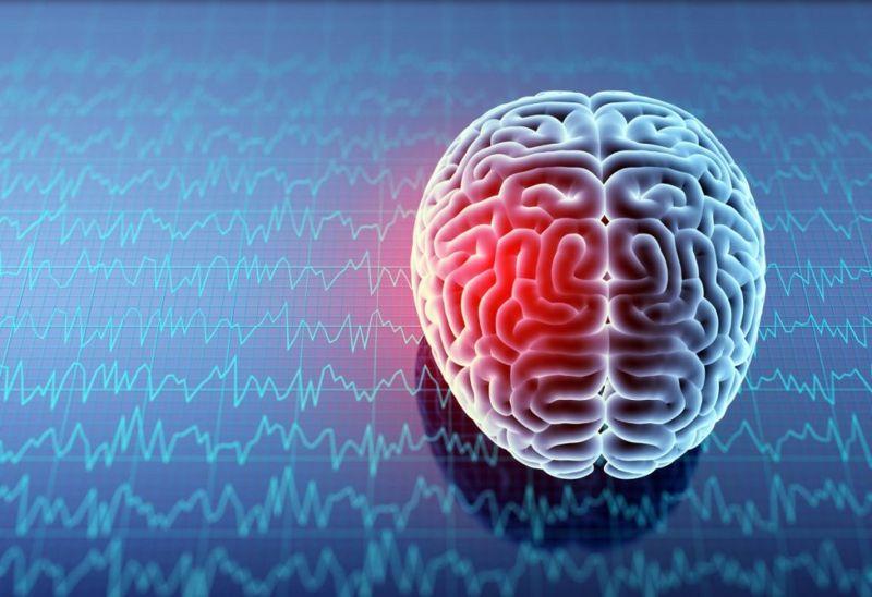 Dysphasia types