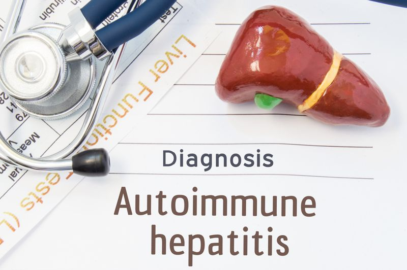 Symptoms and Causes of Autoimmune Hepatitis