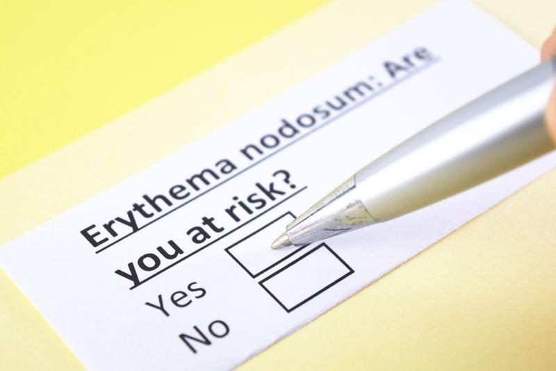 Symptoms and Treatment of Erythema Nodosum