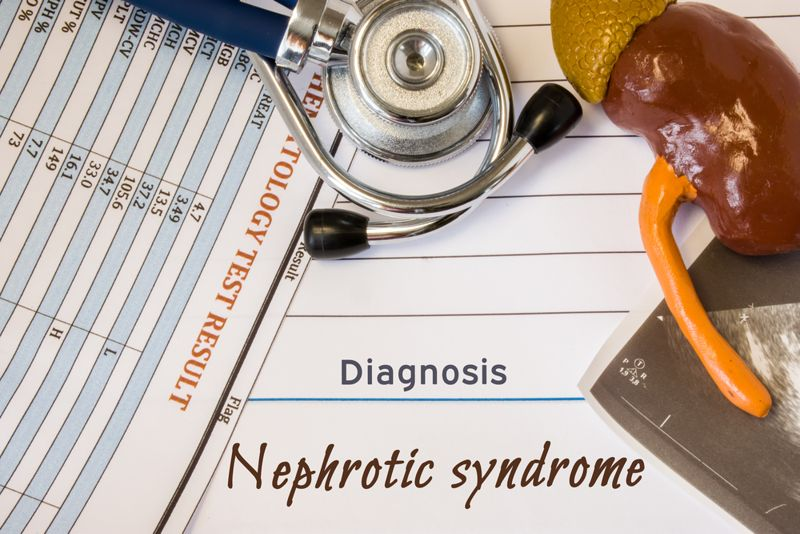 10 Frequently Asked Questions About Nephrotic Syndrome