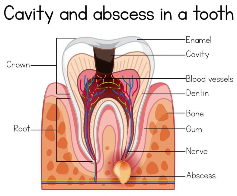 cavities and dental abscesses