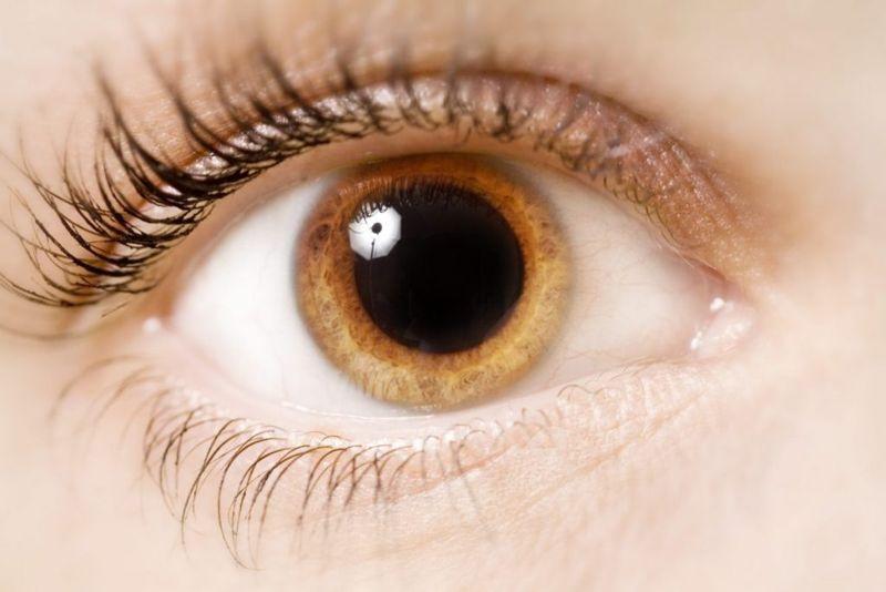 Pupil Anisocoria?